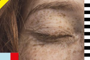 No need to get red-faced – how to tackle rosacea